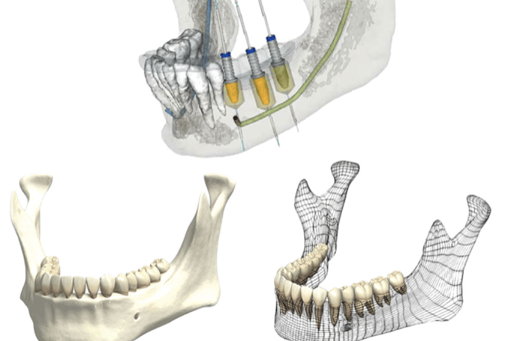ガイドシステムによる手術